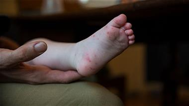 Hand foot and mouth disease